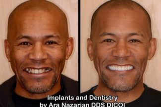 All On Four Dental Implants Michigan