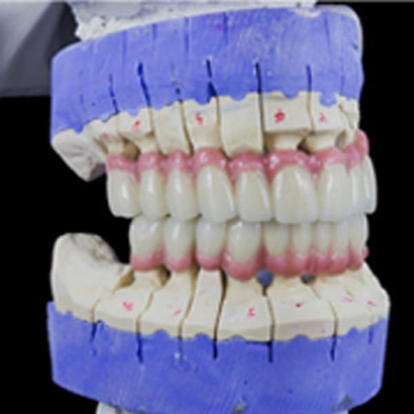 Implant Dentist in Troy MI