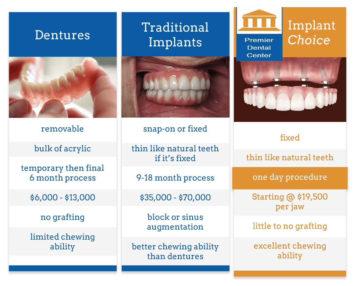 Troy MI Dental Implants Dentist