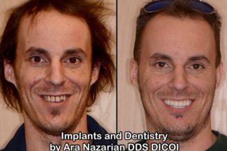 Same Day Implant Dentist Troy MI