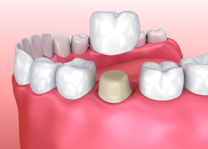 Dental Crown Dentists in Troy MI