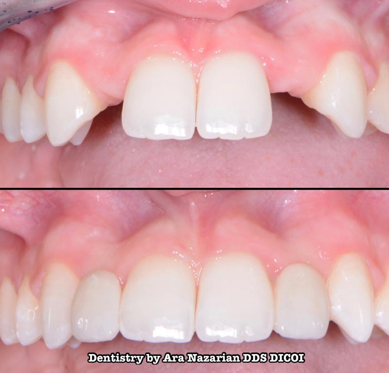 dental bridge procedure troy mi