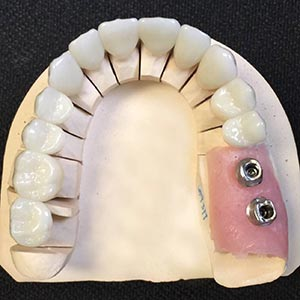 dental cosmetic crown troy mi