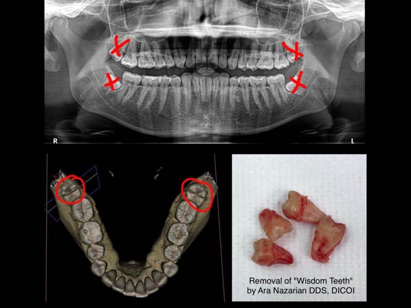 wisdom teeth removal troy mi