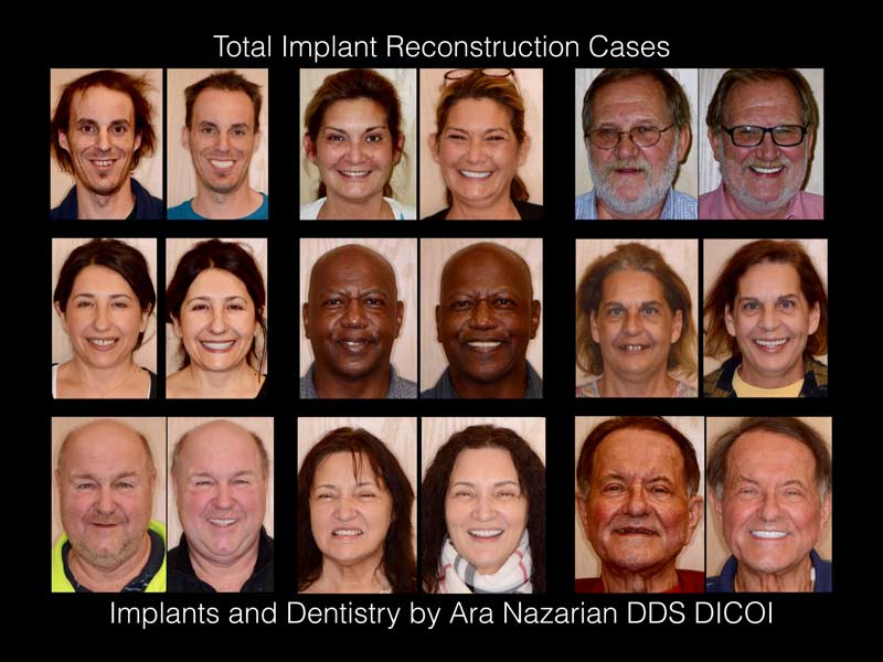 all on 4 dental implants results troy mi