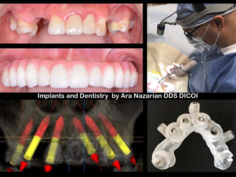 troy mi all on 4 dental implants procedure