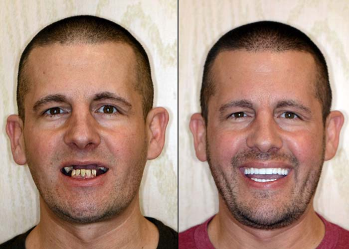 full mouth reconstruction dentist troy